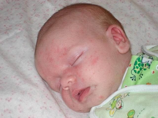 Стафилококк симптомы у детей на коже фото