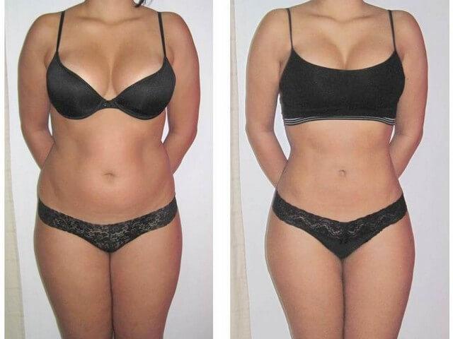 Женщина до и после беременности