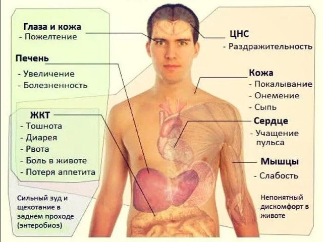 Симптомы при паразитах