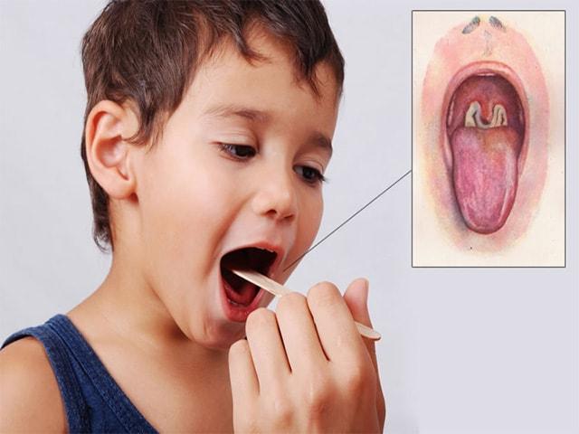 Заболевание в полости рта