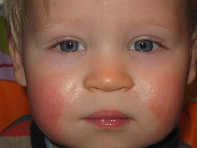 красные щеки у годовалого ребенка причины