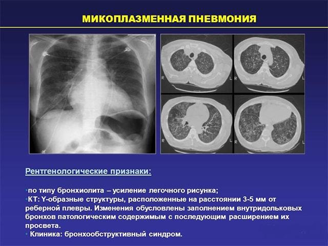 Микоплазменное воспаление