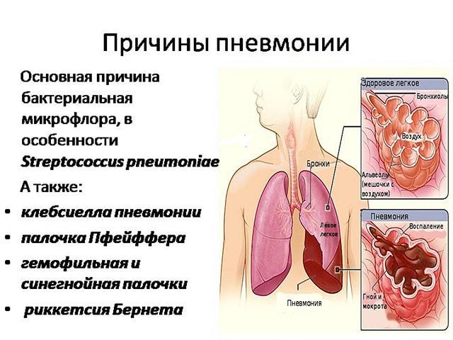 Причины воспаления легких