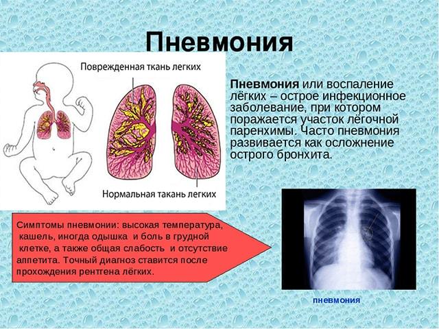 Дыхание при заболевании легких