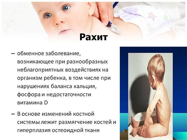Признаки рахита у детей до 1 года - Вс о воспитании детей