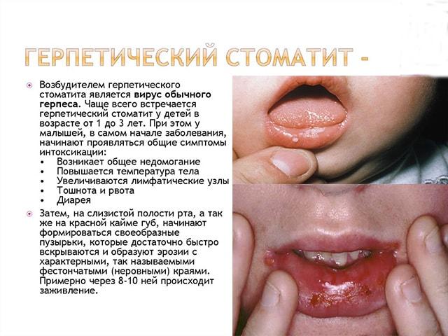 Герпетический вид болезни