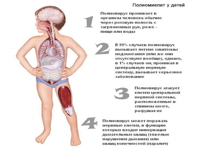 Полиомиелит симптомы у детей после прививки