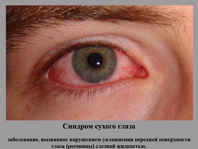 Причина - заболевание
